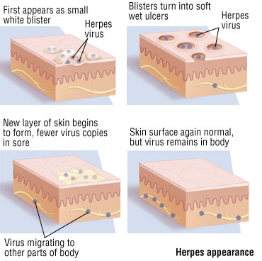 Genital Herpes Picture